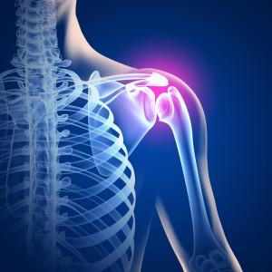 Schmerzen in der Schulter - 3D Grafik
